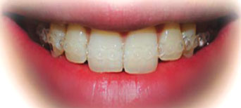 Removable invisible braces after fitting by our orthodontist in Hereford