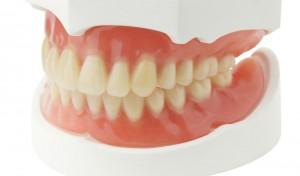 Acrylic dentures look like real teeth and gums.