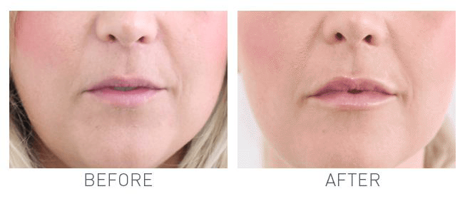Lip Fillers on a patient in Hereford