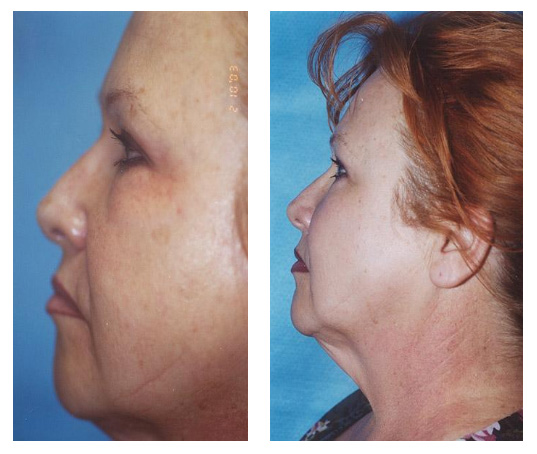 A skin peel can rejuvenate your skin to reveal more youthful, softer and smoother looking skin.