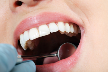 The Impact of Oral Conditions on Life