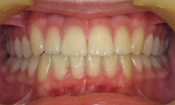 Teeth after orthodontic treatment in Hereford