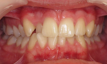 Teeth before orthodontic treatment in Hereford