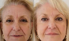 Before and After photo of Botox results in Hereford