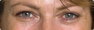 Crows feet before Botox in Hereford