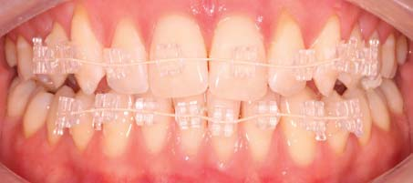 Fixed invisible braces after fitting by our orthodontist in Hereford