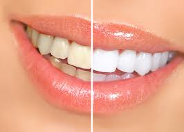 We offer professional teeth whitening services to the residents of Hereford
