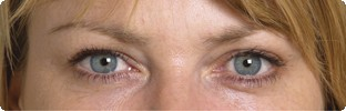 After Botox results on crows feet in Hereford