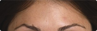 After Botox results on forehead lines in Hereford