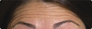 Forehead lines before Botox in Hereford