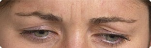 After Botox results on frown lines in Hereford