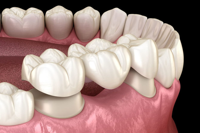 What are dental bridges?